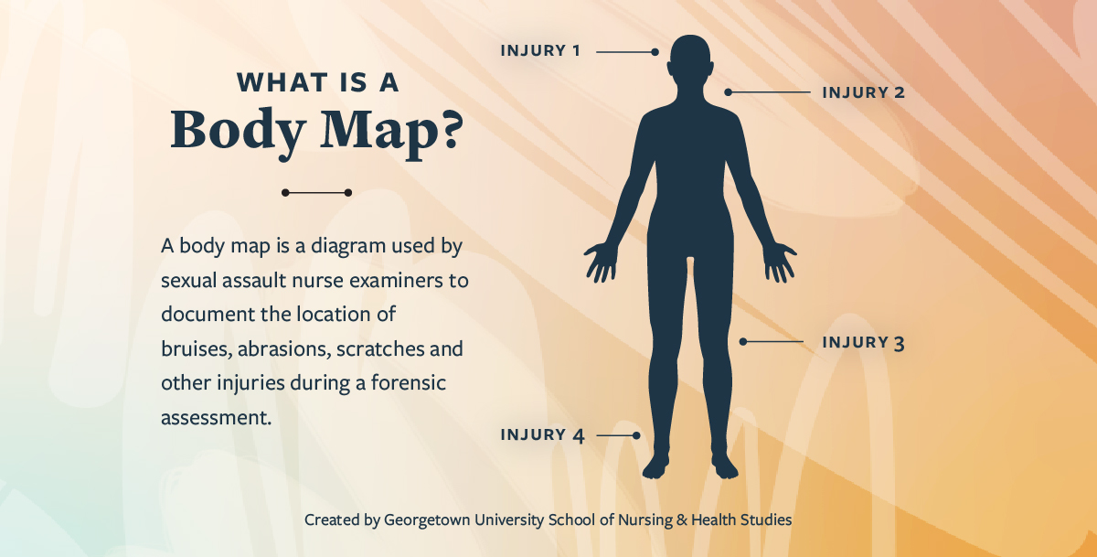 A body map is a diagram used by SANEs to document the location of bruises, abrasions, scratches and other injuries during a forensic exam